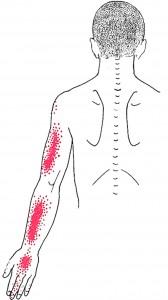 Coracobrachialis smerteområde