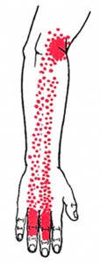 Extensor digitorum smerteområde