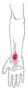 Flexor carpi radialis smerteområde