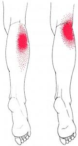 Gastrocnemius smerteområde