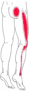Gluteus minimus Smerteområde