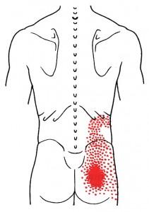 Iliocostalis lumborum smerteområde