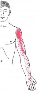 Infraspinatus smerteområde