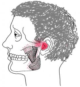 Masseter internus smerteområde