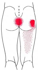 Dybe hoftesmerter