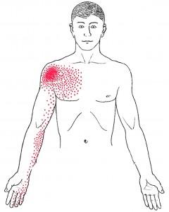 Pectoralis minor smerteområde
