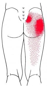 smerteområde