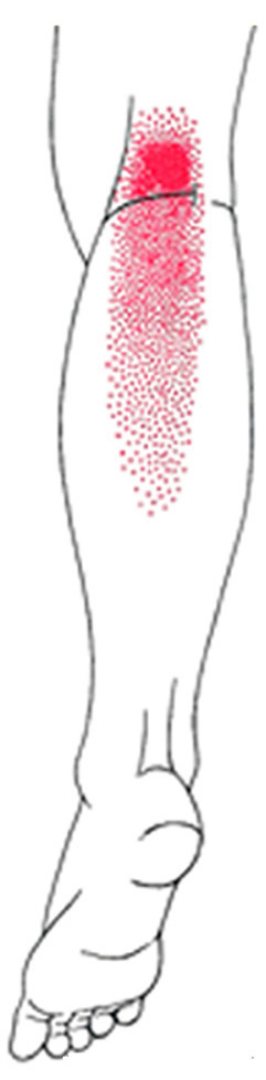 Popliteus smerteområde
