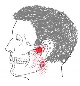 Pterygoid medialis smerteområde