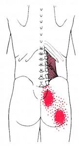 Quadratus lumborum Smerteområde