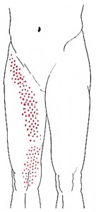 Sartorius smerteområde