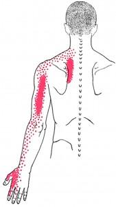 Scaleni smerteområde