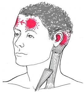 Sternocleidomastoideus smerteområde