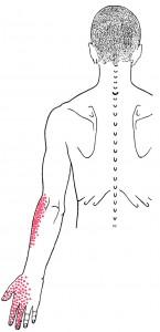 Subclavius Smerteområde