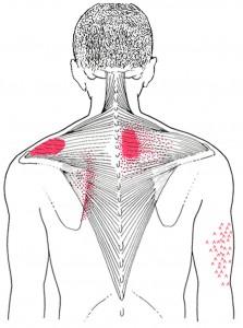 Trapezius medius og inferior smerteområde