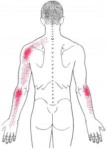 Triceps brachii smerteområde